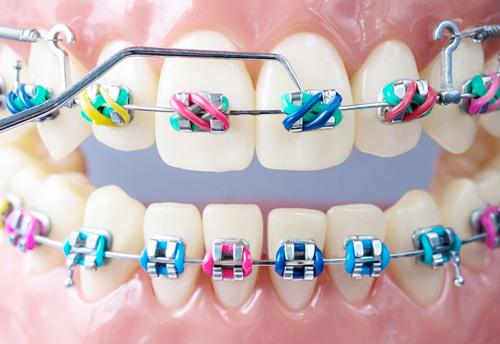 cuanto dura ortodoncia