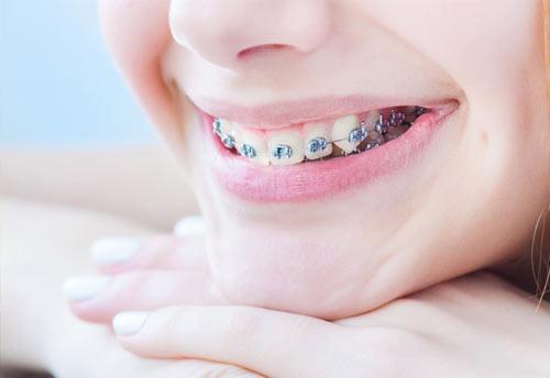 normas de ortodoncia