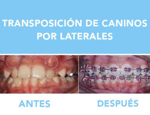 TRANSPOSICIÓN DE CANINOS POR LATERALES
