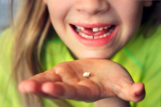 odontopediatra en leon dientes de leche